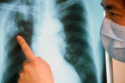 Тамбовчане стали меньше болеть кишечными инфекциями и туберкулезом